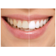 Blanchisseur de dent smile + gel dentaire