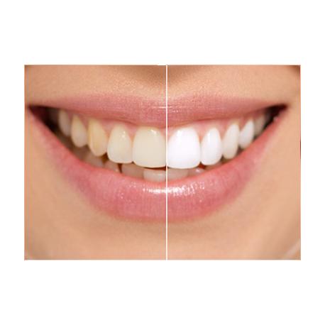 Blanchisseur de dent smile + gel dentaire