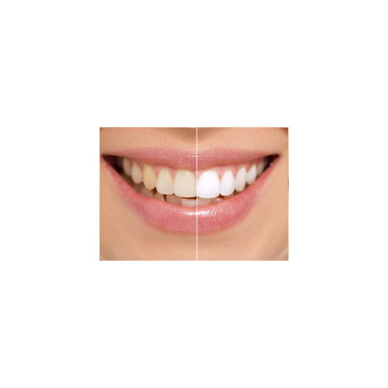 blanchisseur de dent smile gel dentaire matergo. Black Bedroom Furniture Sets. Home Design Ideas